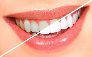 ağız bakımı nasıl yapılmalı, diş bakımı nasıl yapılmalı, ağız ve diş bakımında önemli  noktalar