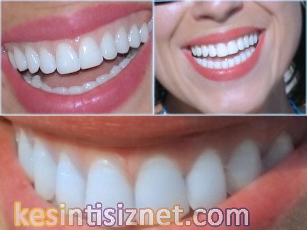 İmplant İstanbul tedavileri, implant uygulaması, implant İstanbul