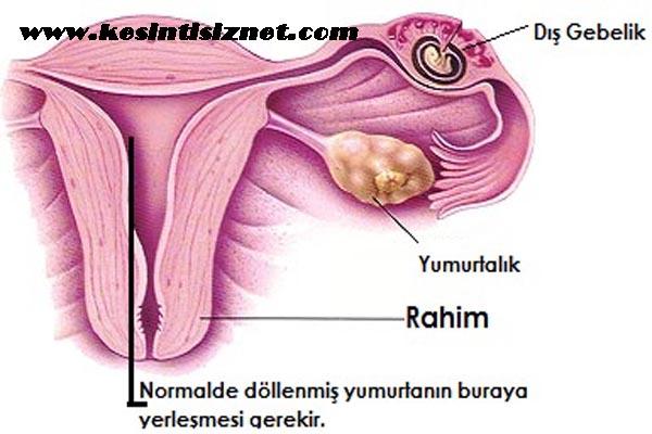 dış gebelik belirtileri, dış gebelik nedir, dış gebeliğin anlaşılması