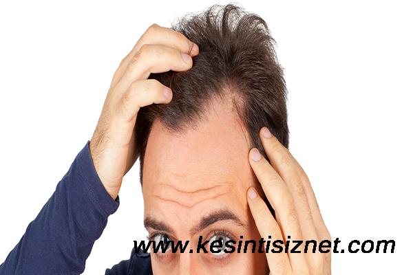 saç niye dökülür, saç dökülmesinin sebepleri nelerdir, saç dökülmesinin nedenleri