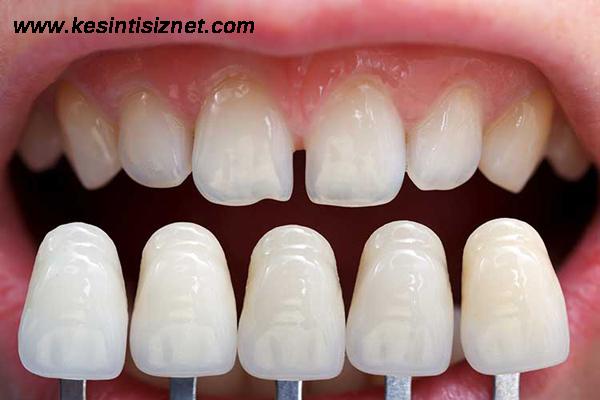 lamşne diş tedavisi, lamine diş yaptırma, lamine tedavi sonrasında nelere dikkat edilmeli