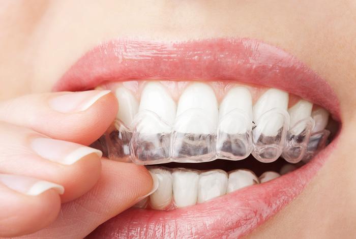 görünmez diş teli fiyatları, diş teli fiyatları, görünmez diş teli taktırma fiyatları