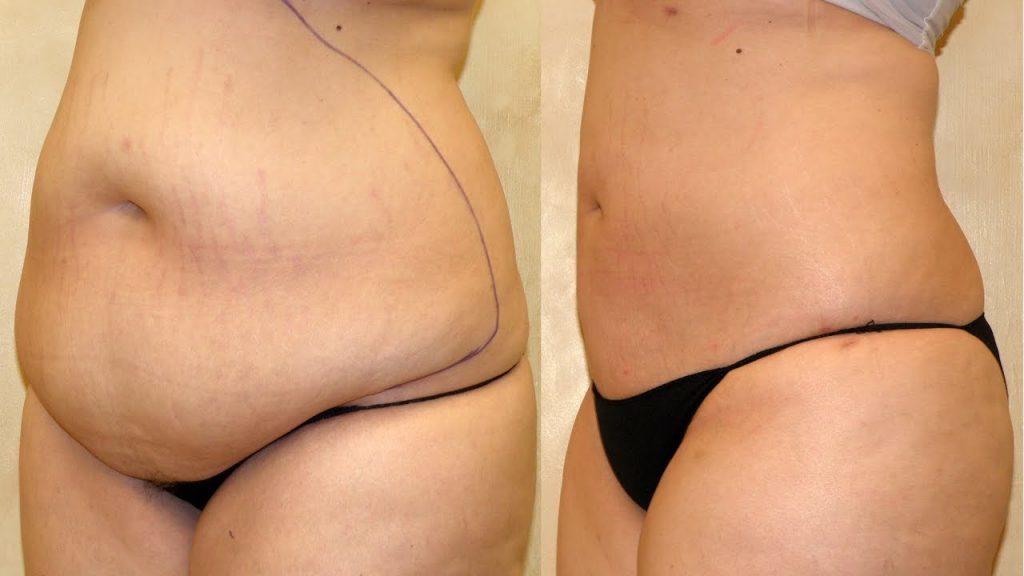 Liposuction fiyatları, Liposuction yapım ücreti