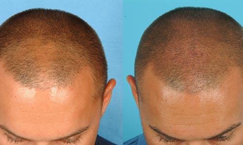 saç ektirme, saç ekimi doktoru, saç ekimi yapan doktorlar