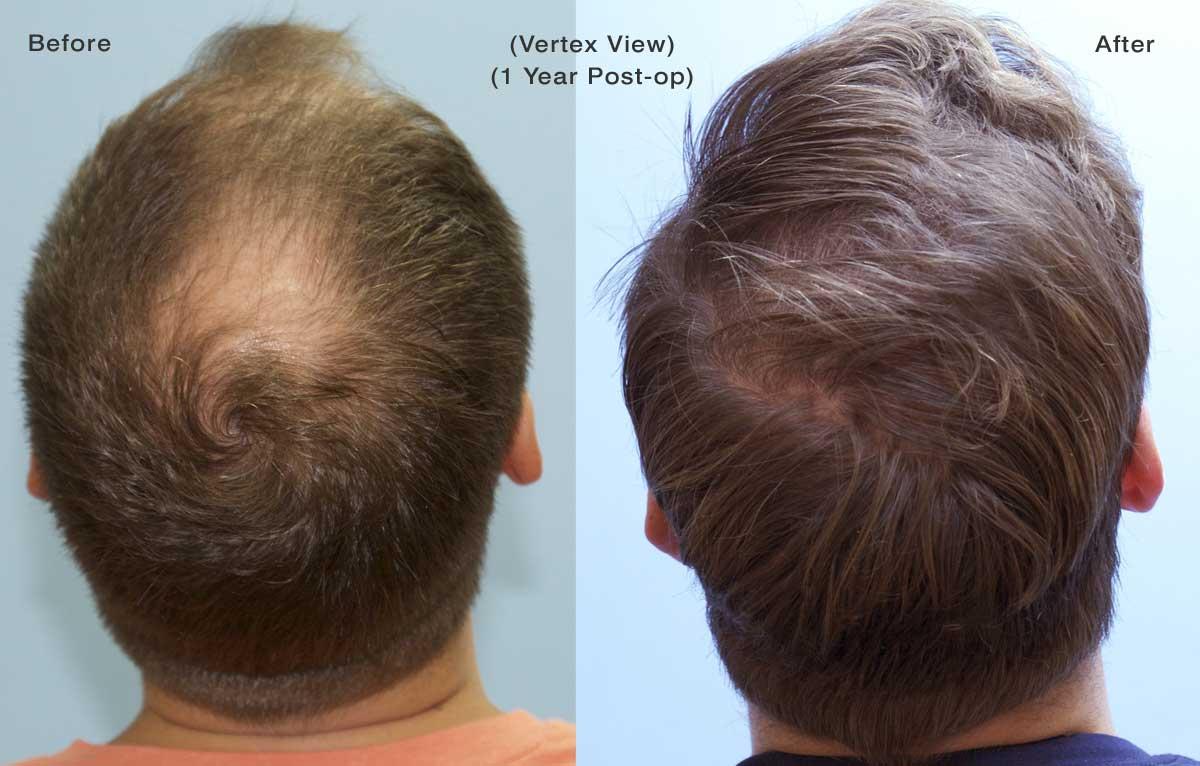 saç ekim ücretleri, saç ekimi yapımı, istanbul saç ekimi