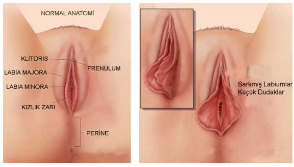 vajina estetiği yapımı, vajina estetiği yapımı sonrası, vajina estetiği yaptırma
