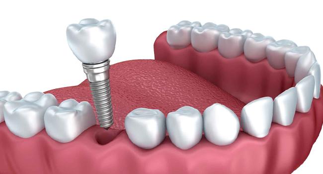 implant fiyatları ne kadar, ekonomik imlant fiyatları, ucuz implant markaları