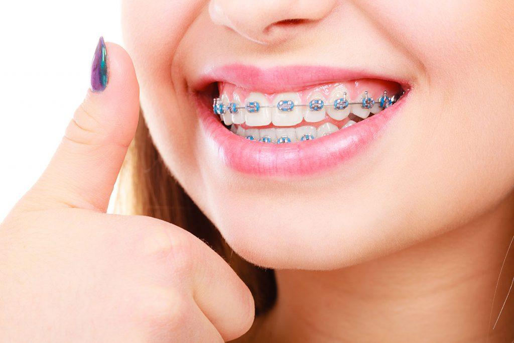 ortodonti tedavisi nedir, ortodonti tedavisi kimlere uygulanır, ortodonti tedavisi nasıl yapılır
