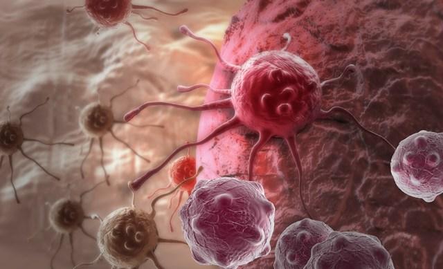 kanser çeşitleri, kanser çeşitleri nelerdir, kanser çeşitleri hakkında bilgiler