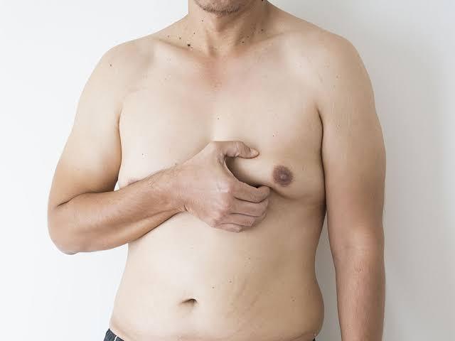 jinekomasti ameliyat riskleri neler, jinekomasti ameliyatı, jinekomastinin nedenleri