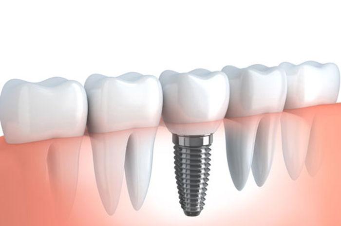 implant kime yapılamaz, implant yapılması riskli kişiler