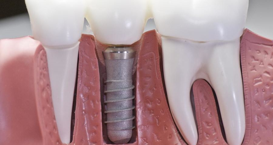 implant modelleri, kaliteli implant markaları, implant uygulamaları