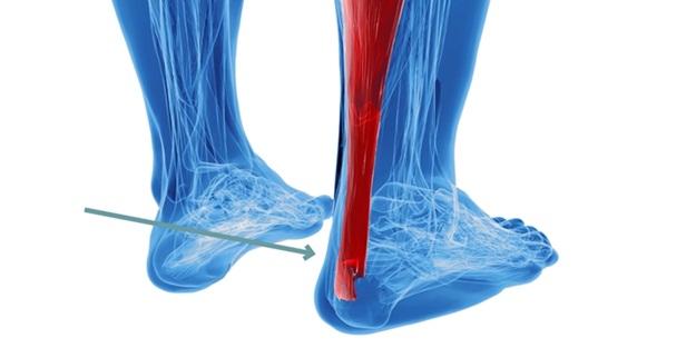 sinir yaralanmaları, tendon yaralanmaları, sinir yaralanma tedavileri