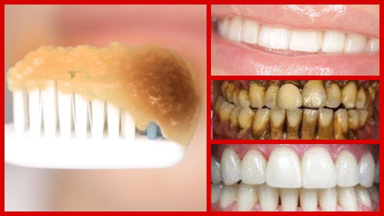 diş beyazlatma, doğal yoldan diş beyazlatma, diş nasıl beyazlatılır