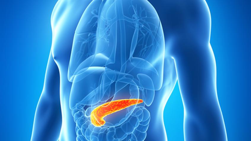 kronik pankreatit tedavisi, kronik pankreatit tedavisi yapımı, kronik pankreatit nasıl tedavi edilir